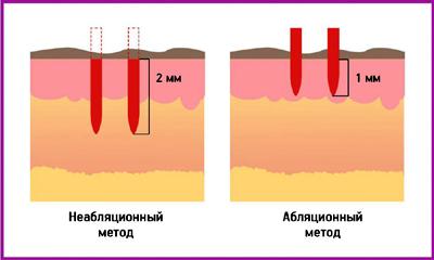 Абляционное и неабляционное воздействие лазера