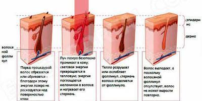 Принцип действия александритового лазера