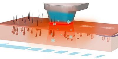Воздействие лазера на фолликулы