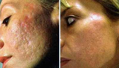 Удаление рубцов на лице