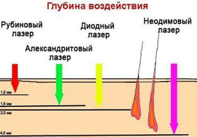 Виды лазеров для эпиляции