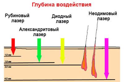 Глубина проникновения разных видов лазеров