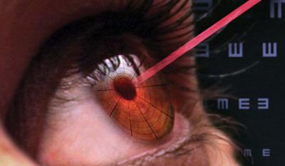 Лазерные травмы глаз