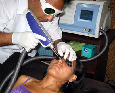 Неодимовый лазер в косметологии