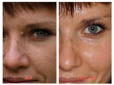 До и после процедуры удаления папиллом лазером