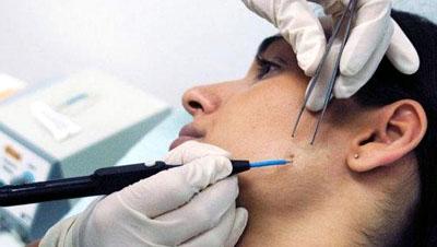 Удаление папиллом косметологическим лазером