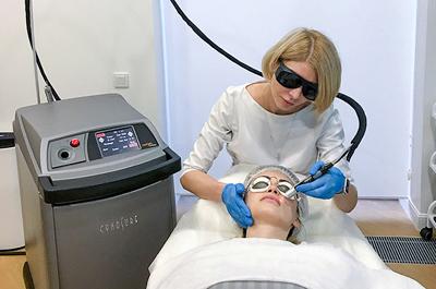 Как избавиться от «красных щек» с помощью лазера