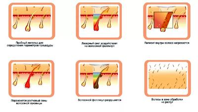 Воздействие лазера на волос при эпиляции