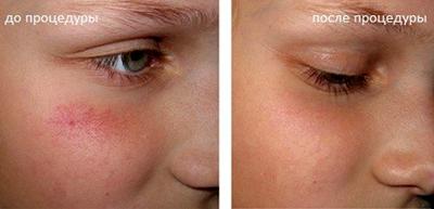 Фото до и после лазерного удалени сосудов на лице